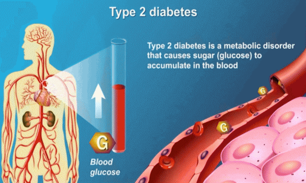 Diabetes Step By Step: Make a Plan