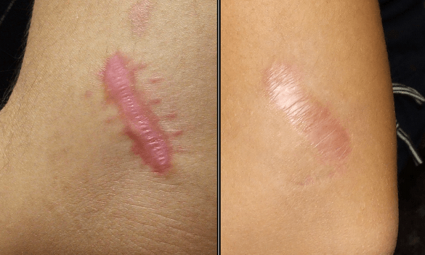 Scars and Keloids Can Be Removed with Natural Methods