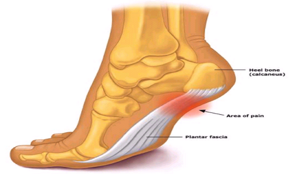Flat Feet Natural Remedies
