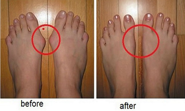 Remove Callus From Feet Naturally