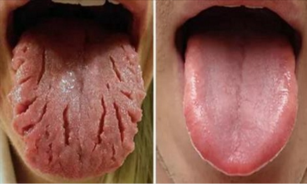 Be-Aware-Of-THIS-These-9-Changes-On-Your-Tongue-Reveal-Almost-All-Your-Diseases