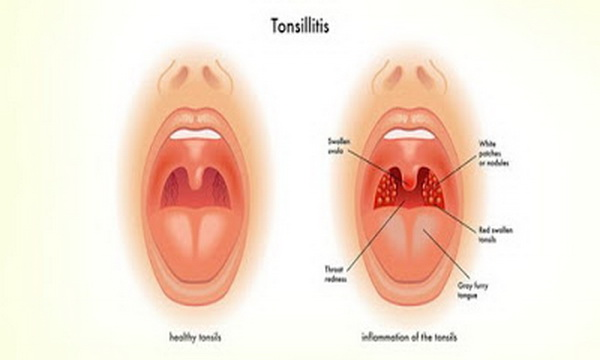 Treat-Tonsillitis-with-Home-and-Herbal-Remedies
