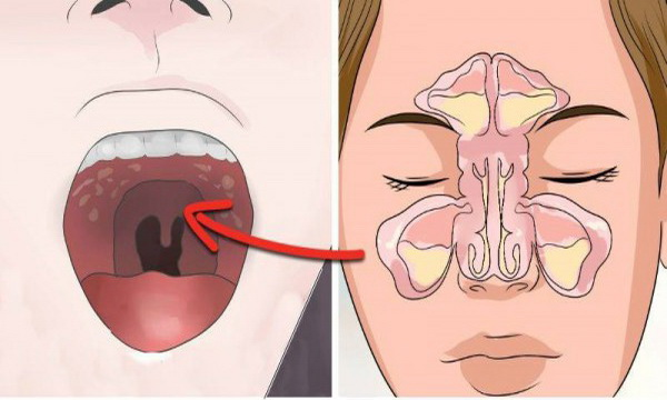 if-you-get-sinus-headaches-or-constant-congestion-you-need-to-check-for-this-hidden-connection