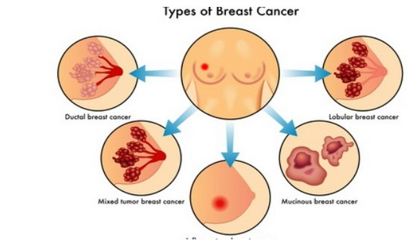 breast cancer early warning signs