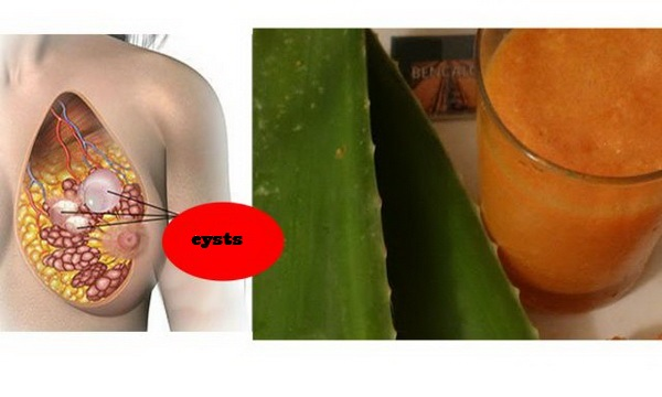 Image result for Eliminate Breast Cancer Cysts With Only 2 Ingredients You Have At Home