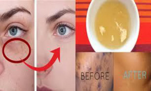 how to get rid of black spots on face