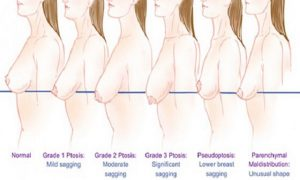 Women Take Note Will Surprise – 4 Habits To Avoid Sagging Breasts