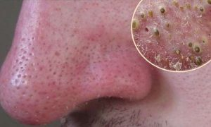 Get Rid Of All Those Pesky Black Spots Instantly