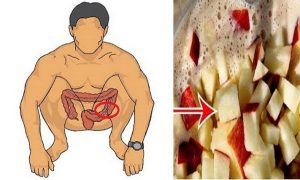 Incredible Look Like: Clean Your Colon And Lose 10 Kilos In Three Weeks With This Home Remedy