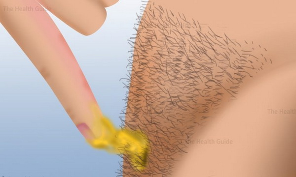 Impressive This Is How You Can Remove Body Hair Permanently No
