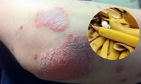 if-you-have-wrinkles-warts-or-psoriasis-try-banana-peels