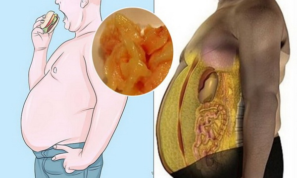 How to Get Rid of Visceral Fat the Healthy Way