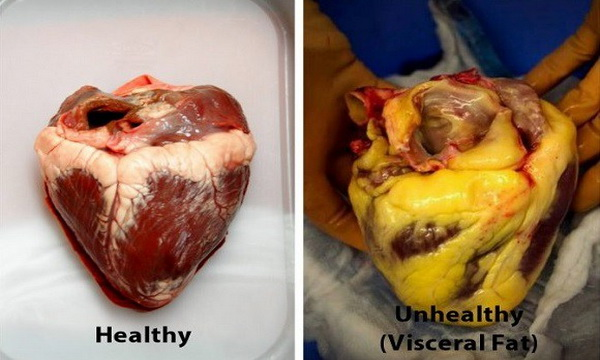 Foods That Clean Your Arteries Naturally