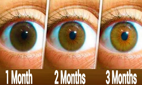 Eye Drops For Cataracts >> Powerful Natural Recipe To Cleanse The Eyes, Reduce Cataracts And Increase Vision In Just 3 ...
