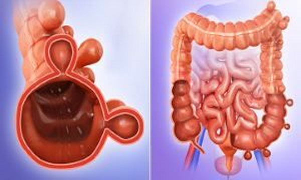 Stomach Ulcers – Causes, Symptoms, Treatment, And Diet